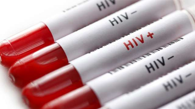 Image result for Now smartphone will detect HIV within seconds