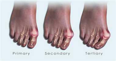 how to avoid bunions on feet