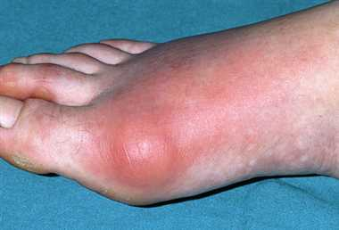 Gouty Arthritis Symptoms, Treatment, Causes