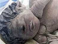 Tragic 'cyclops' baby born with one eye in Egypt after radiation exposure