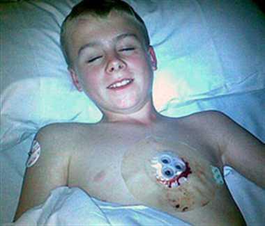 boy got impaled on a metal spike