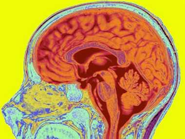 Can We Create An Artificial Brain?