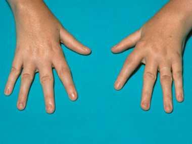 Cure for rheumatoid arthritis