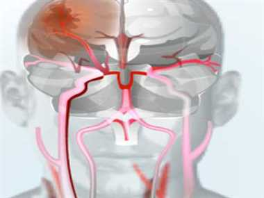 Take proper treatment for ischemic stroke