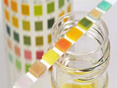Urine Color and Your Health