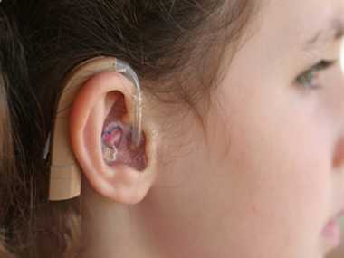 New Treatment for deaf people