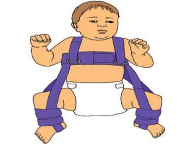 Haphazard development of the hip in children