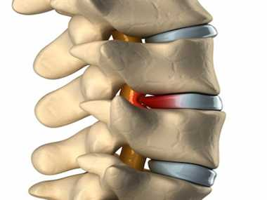 Cure for Spinal Rheumatoid arthritis