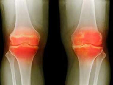 Cure for arthritis