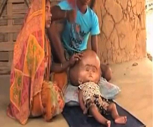 इलाज के अभाव में बड़े सिर वाले बच्ची की मौत, अगले महीने होनी थी सर्जरी