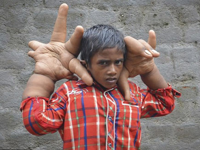 know why Boy with giant hands shunned from school?
