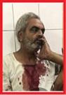 बिल्सी में व्यापारी को गोली मारकर लूटा