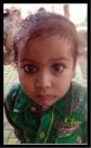 सरूरपुर में 6 बच्चे चिकन पॉक्स से पीड़ित