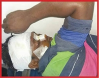 road accident is one enjoured