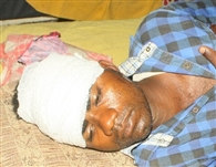 crime Electoral rivalry firing, three injured