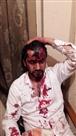 संजौली में युवक को मारपीट का केस वापस लेने की धमकी