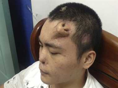 Chinese man has new nose on forehead