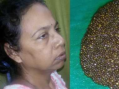 womans stomach ,thousand stones ,Kolkata ,national news hindi news,महिला,पेट,हजार,पथरी,वर्ल्ड रिकार्डस