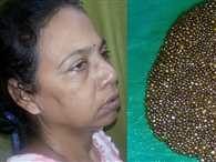 12 thousand stones came from woman's stomach