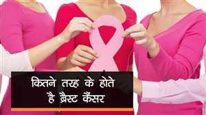 कितने तरह के होते हैंब्रेस्ट कैंसर