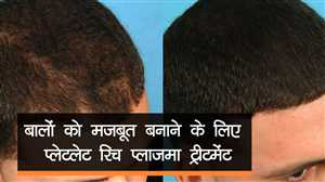 बालों को मजबूत बनाने के लिए अपनाएं प्लेटलेट रिच प्लाज़मा ट्रीटमेंट