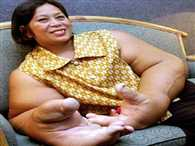 The woman with the 'biggest HANDS in the world