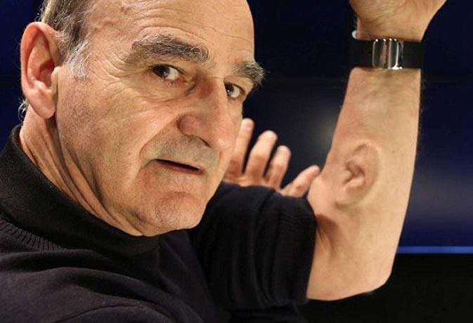 प्रोफेसर ने बांह पर उगाया कान, बना रहे वाईफाई से कनेक्ट होने का प्लान