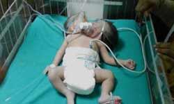 बलिया में दो सिर वाली बच्ची का जन्म