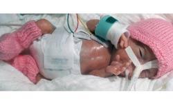 जर्मनी में जन्मी दुनिया की सबसे छोटी जीवित बच्ची, हथेली के बराबर है लंबाई