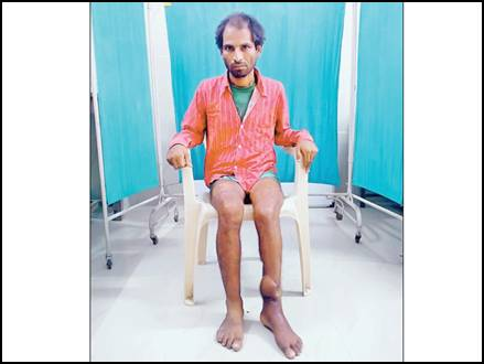 broken leg jabalpur 2017714 134650 14 07 2017
