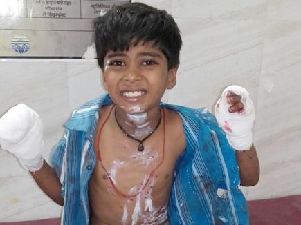 बीना में मोबाइल की बैटरी फटने से बालक हुआ घायल