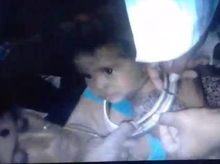 स्टील के कलश में फंसा  बच्ची का सिर ,काटकर निकाला