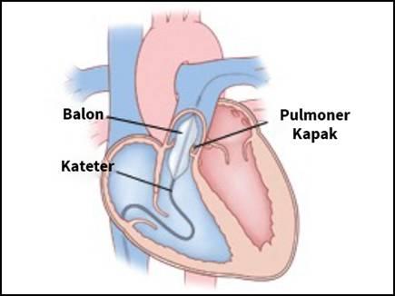 balloon pulmonary valvotomy 2017520 13459 20 05 2017