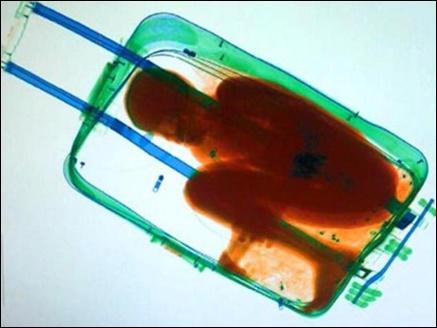 body suitcase 17 03 2017