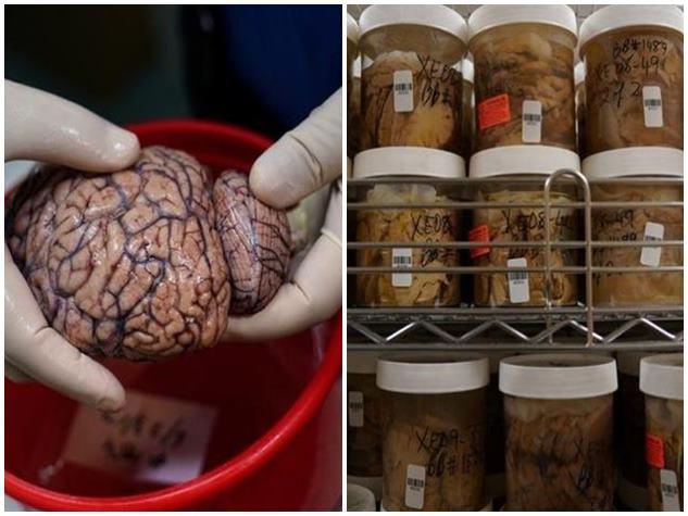 PHOTOS : इस ब्रेन बैंक में सहेजकर रखे गए हैं एक हजार दिमाग