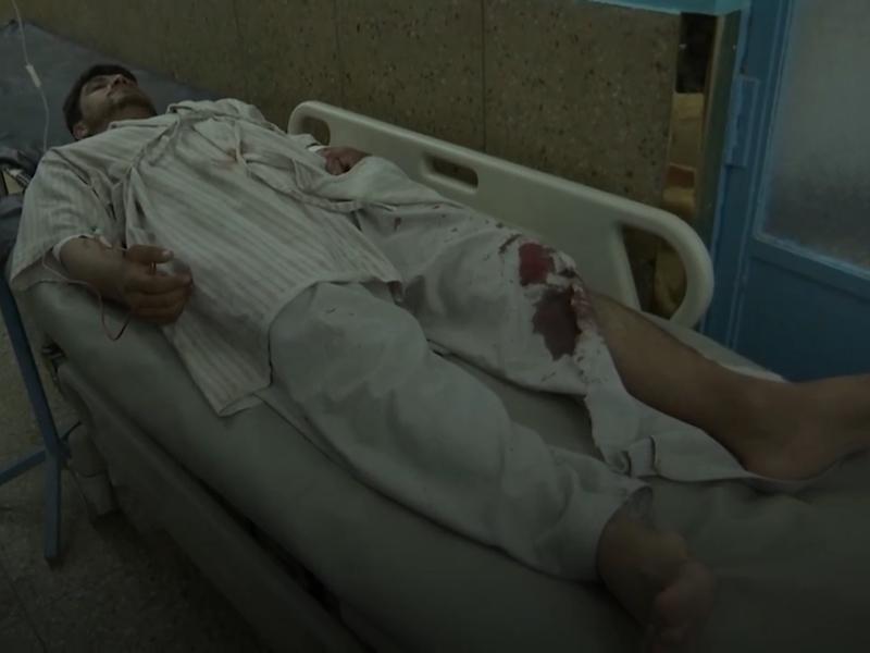 ISIS ने ली काबुल की शादी में हुए धमाके की जिम्मेदारी, 182 घायल और 63 की हुई थी मौत