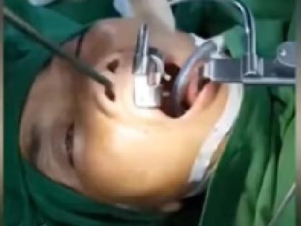 VIDEO : डॉक्टरों ने महिला के गले से निकाली जिंदा जोंक, वायरल हो रहा वीडियो
