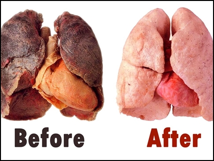 lungs cleaning 12 10 2017
