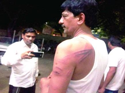 विधायक से मारपीट मामले में कार्रवाई, महासमुंद एसपी को हटाया