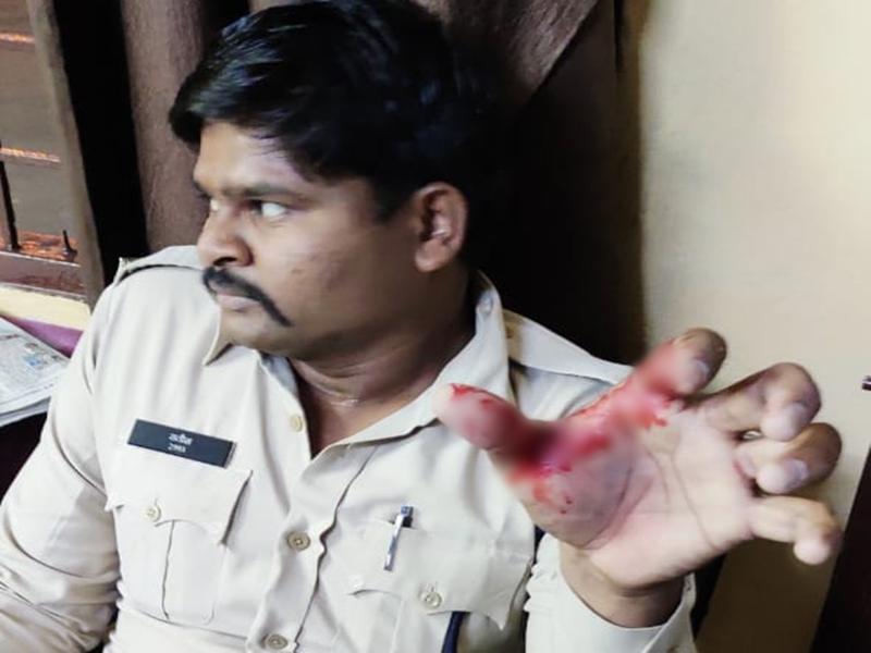 LockDown in Bhopal : हिस्ट्रीशीटर बदमाश और साथियों के हमले में दो पुलिसकर्मी घायल
