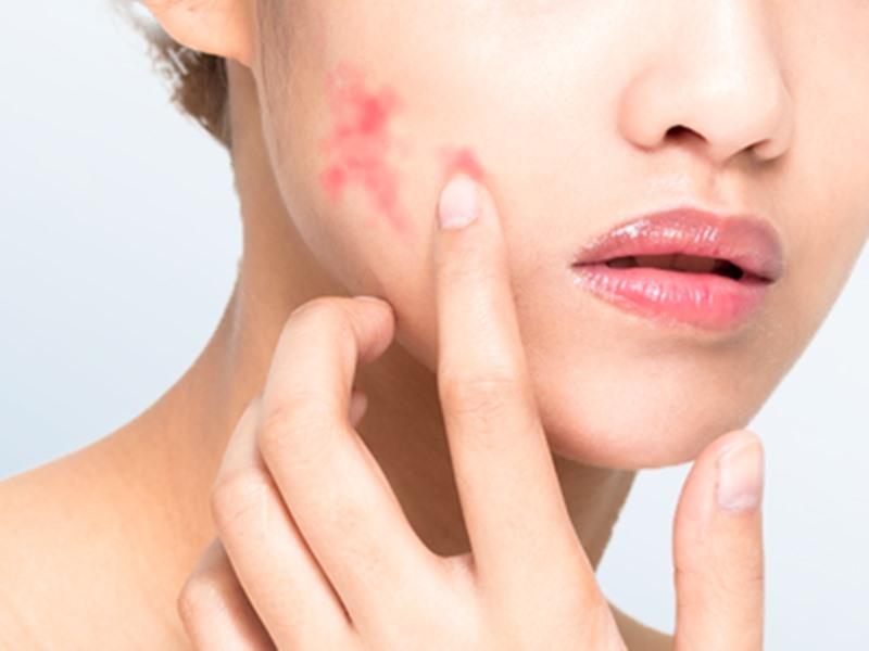 Skin Problem: त्वचा के लिए जरूरी विटामिन और फैट