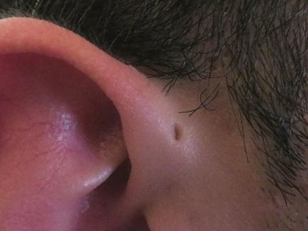 tiny-hole-ear 22 11 2016
